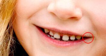 remedios caseros para las boqueras
