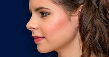 Mascarilla casera para revitalizar el rostro