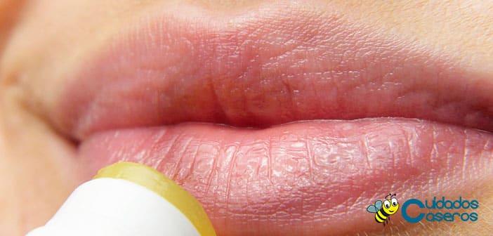 Como tratar de forma natural el herpes labial