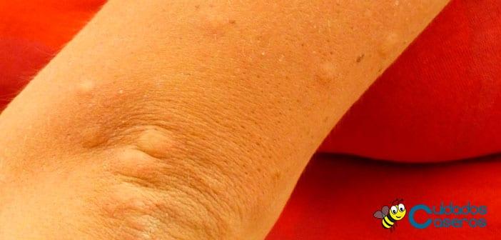 Manchas rojas en la piel